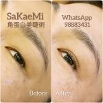 Eyelash_surgery_12.jpg